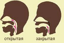 Симптомы причины коррекция ринолалии